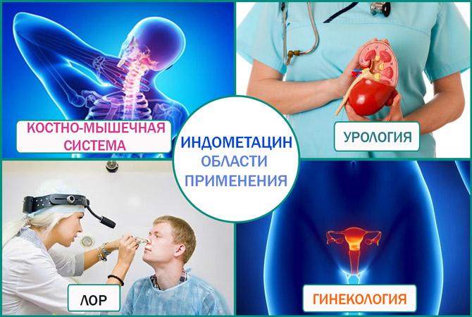Индометацин: где применяют
