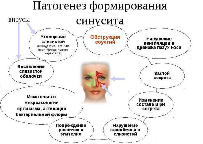 Развитие синусита