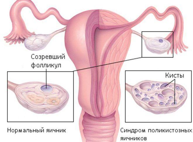 Синдром штейна левенталя