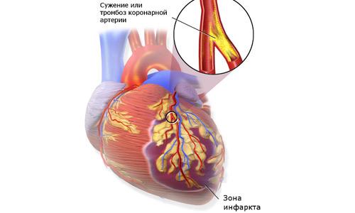 инфаркт миокарда причина