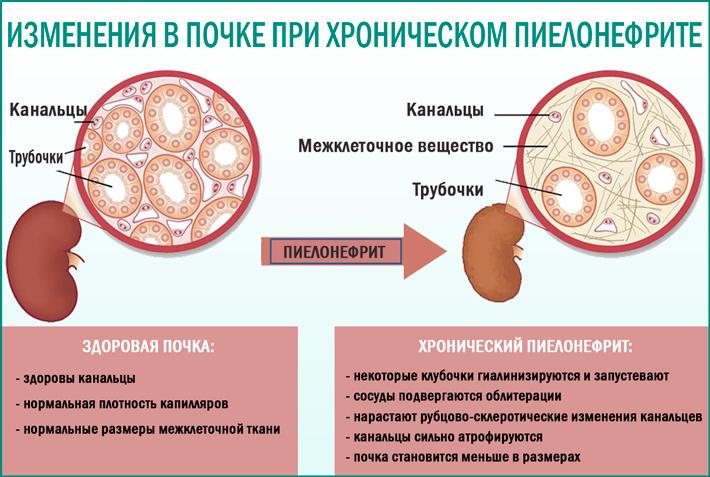 Пиелонефрит: клиника