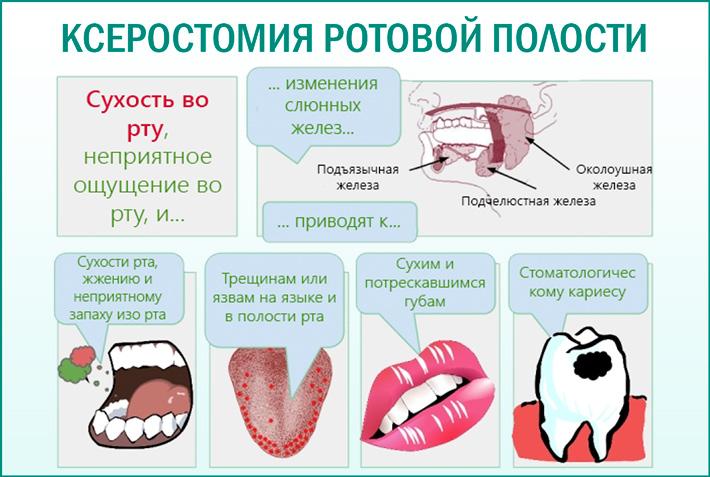 Сухость полости рта (ксеростомия)