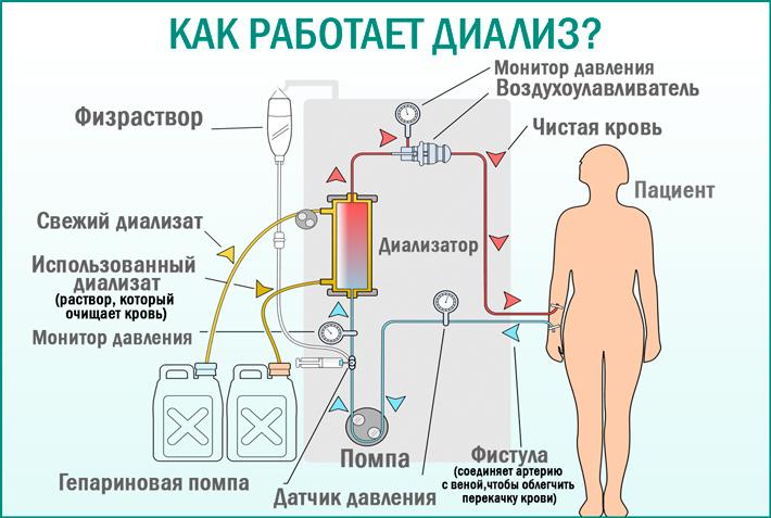 Гемодиализ: процесс работы