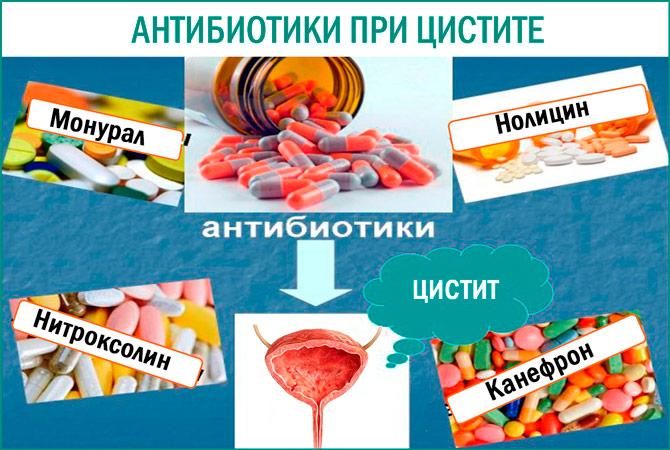 Какие антибиотики при цистите самые действенные?