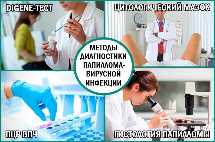 Диагностика папилломавирусной инфекции