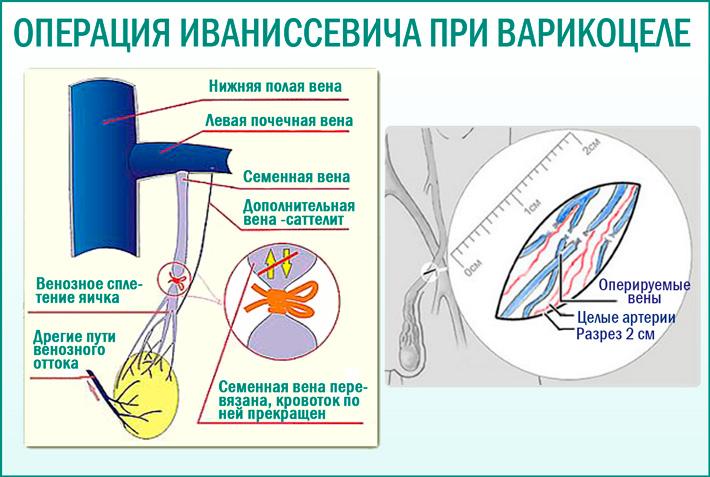 Операция Иваниссевича: метод лечения варикоцеле