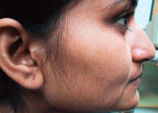 Появление волос на подбородке