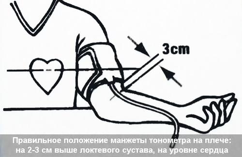 расположение манжеты тонометра