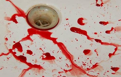 сильная потеря крови
