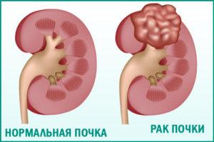 Рак почек: симптомы