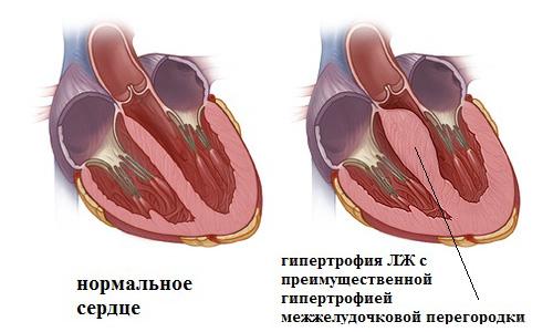 гипертрофия межжелудочковой перегородки