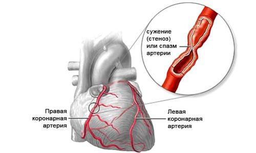 стенокардия и астма