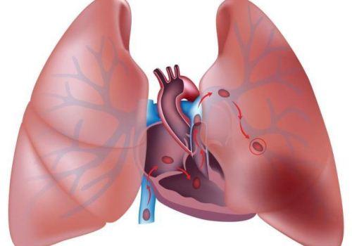 формы острого легочного сердца