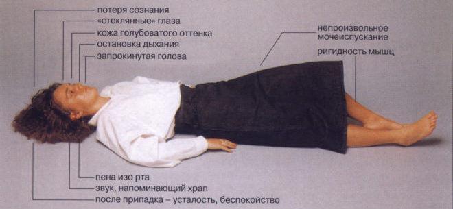 Основные симптомы, по которым можно определить эпилептический припадок
