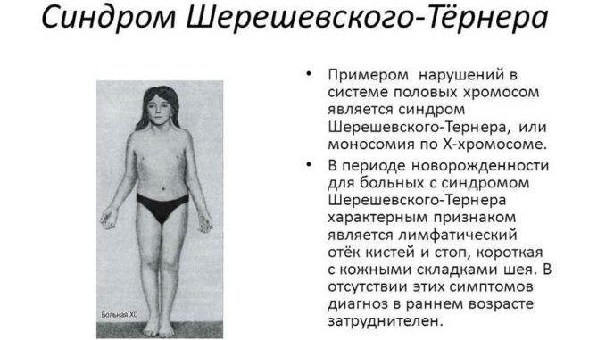 Синдром Шерешевского-Тёрнера