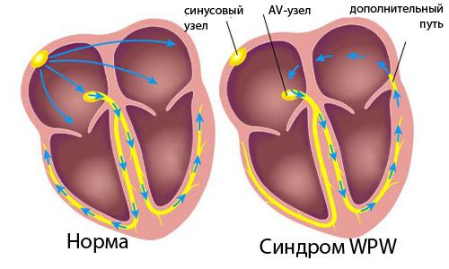 Синдром WPW