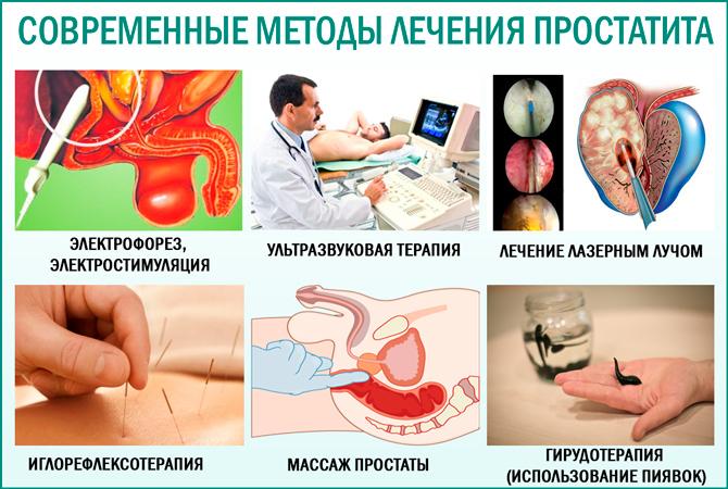 Простатит: современные методы лечения