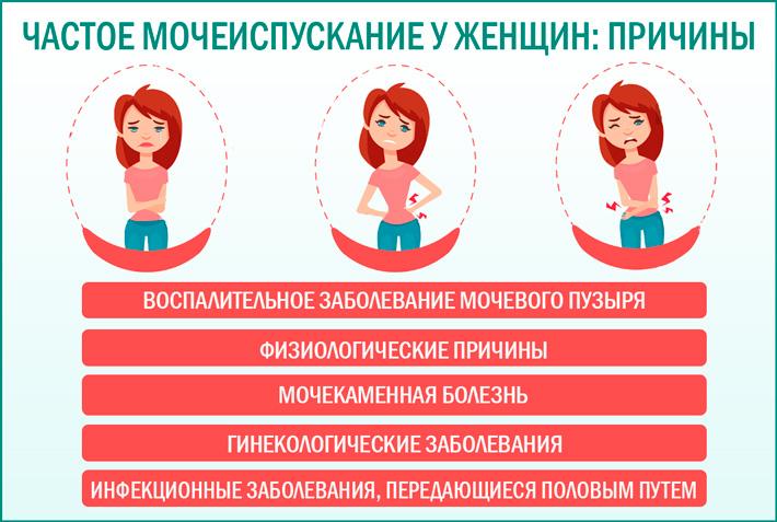 5 причин учащенного мочеиспускания у женщин