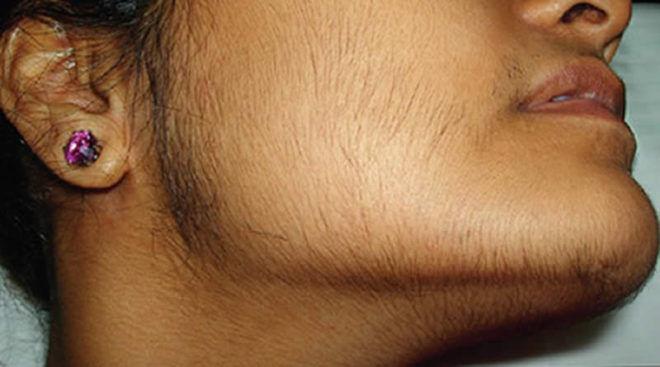 Избыточный рост волос на лице