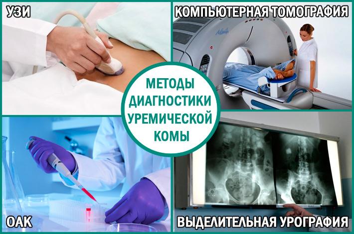 Урологическая кома: методы диагностики