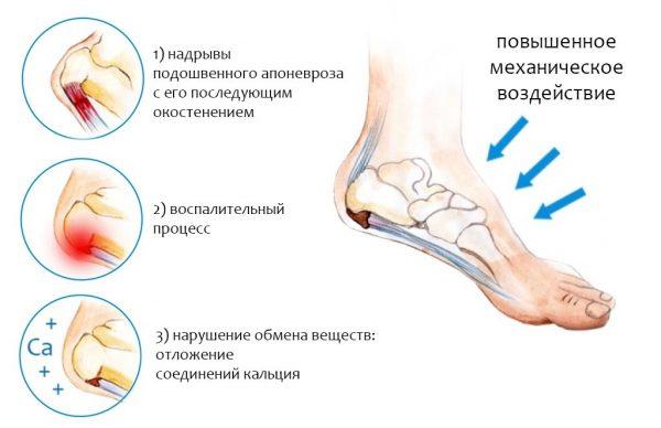 Боль в ногах становится невыносимой
