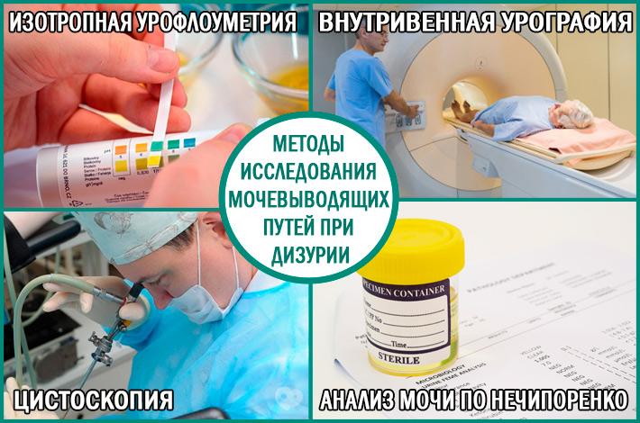 Методы диагностики мочевыводящих путей при дизурии у мужчин