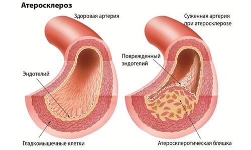 склероз артерий