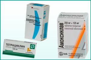 Женский уретрит: антибиотики