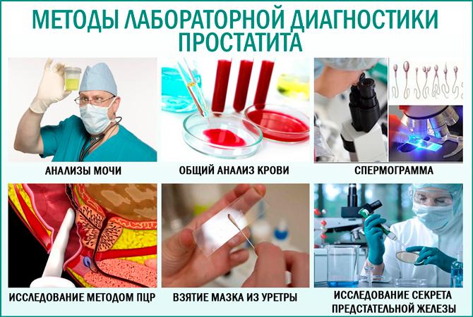 Диагностика простатита: лабораторные методы