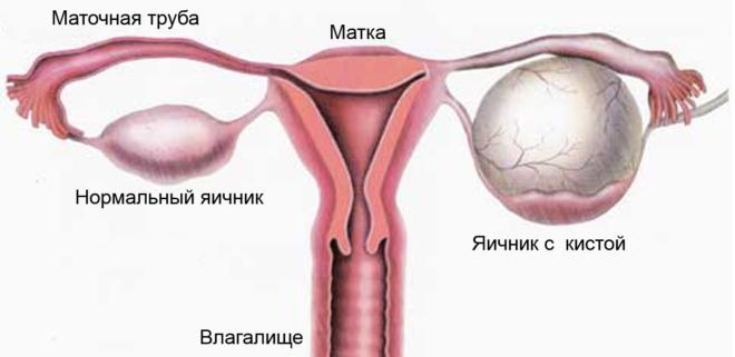 Кисты органов малого таза