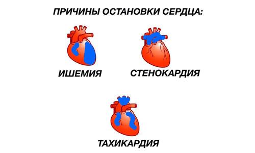 причины остановки сердца