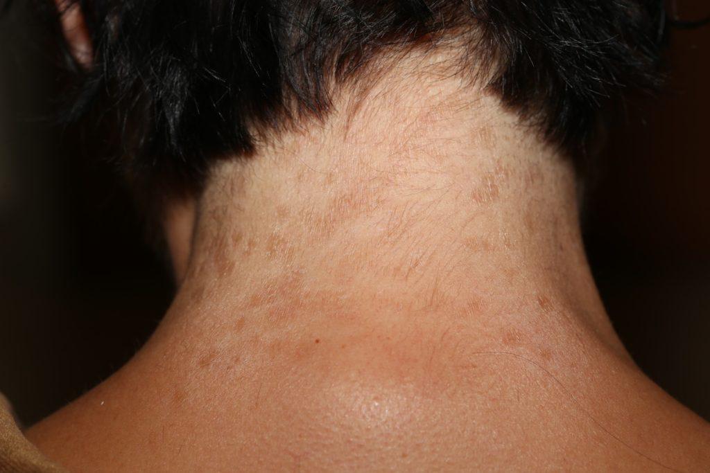 Почему появляются папилломы на шее.