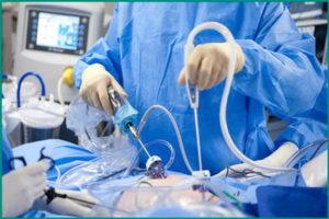Хирургическое удаление опухоли мочевого пузыря