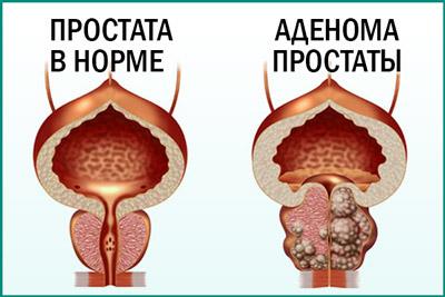 Как лечить простатит в домашних условиях чесноком профилактика хронического простатита у мужчин упражнения
