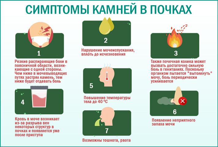 Камни в почках: симптомы