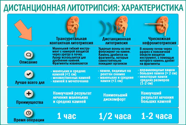 Дистанционная ударно-волновая литотрипсия