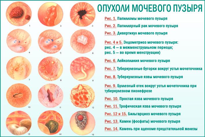 Рак мочевого пузыря: виды рака