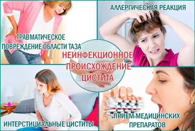 Аллергия и цистит
