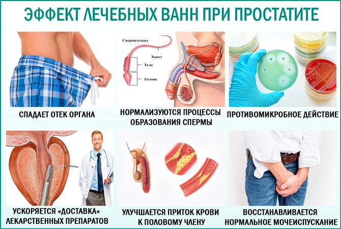 Ванны при простатите: эффективность лечения