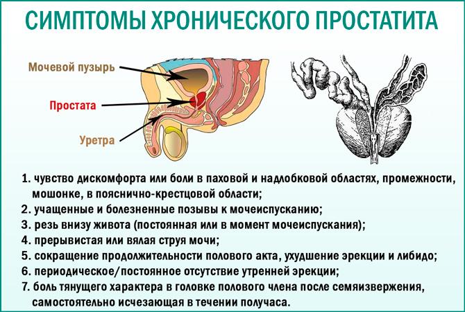 Как узнать хронический простатита простатит хронический острый