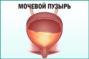 Моча в мочевом пузыре
