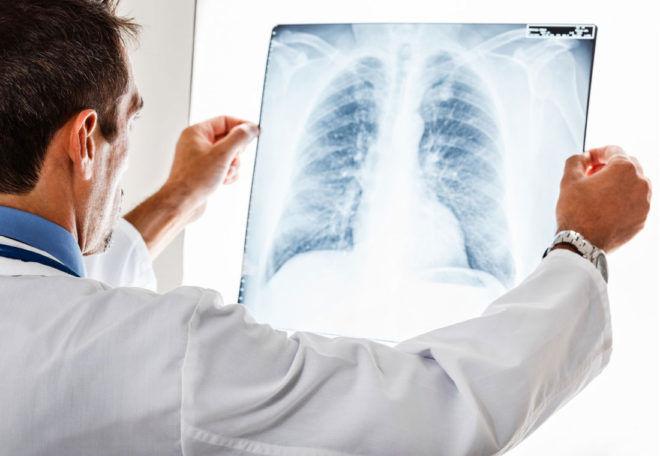 Восполение органов дыхания