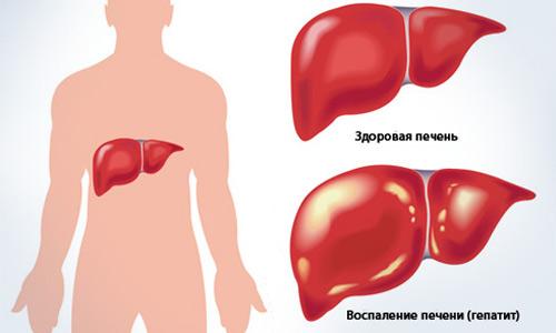 гепатит и давление