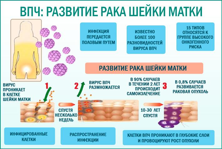 Вирус папилломы человека (ВПЧ) и рак шейки матки