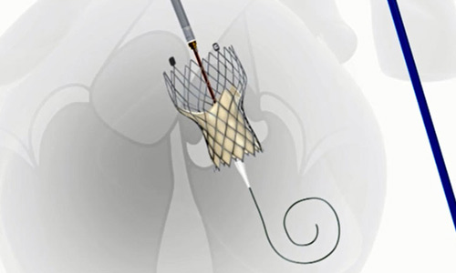 транскатетерная технология имплантации
