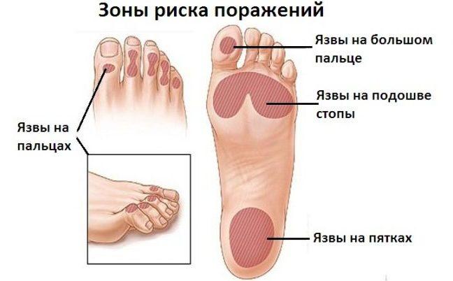 Вероятность развития ангиопатии ног