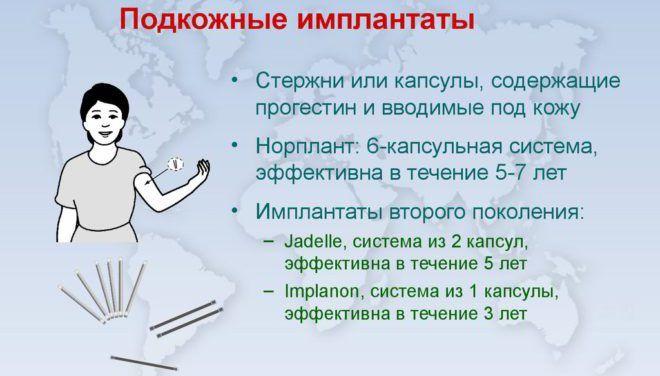 Использование подкожных имплантатов