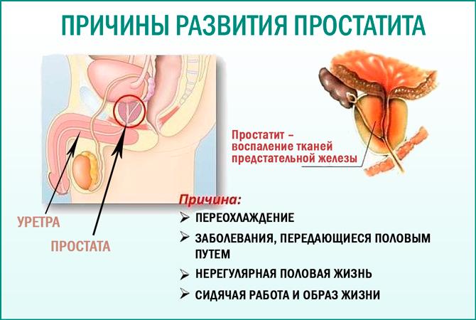 Можно ли мужчину заразить простатитом можно определить простатит узи