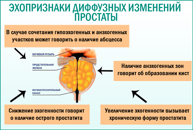 Диффузные изменения простаты: эхопризнаки