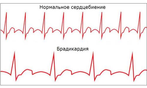 брадикардия и кардиостимулятор